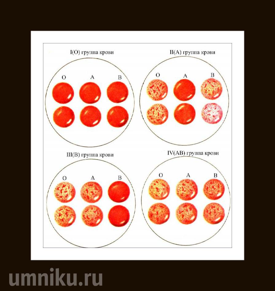 определение группы крови новорожденного